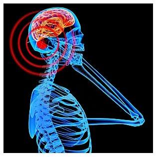 telefonini-radiazioni